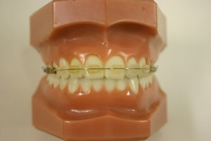 Affordable Orthodontic Treatment in Medellin